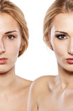 Antes y después de componga foto de archivo