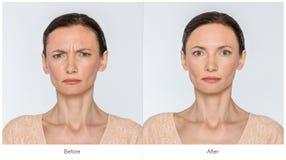 Antes y después de concepto de la anti-edad fotos de archivo