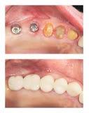 Antes y después de que - implantes y coronas Fotos de archivo