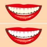 Antes y después de sonrisa libre illustration