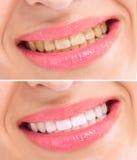 Antes y después de blanquear los dientes del tratamiento Fotos de archivo libres de regalías