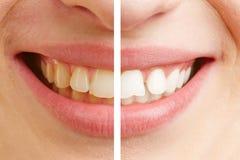 Antes y después de la comparación de los dientes que blanquean Imagen de archivo libre de regalías
