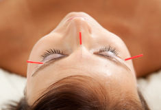 Anti-Aging Acupuncture Treatment. On young attractive female patient Stock Image