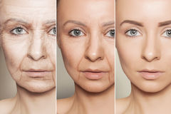 Anti-aging procedures on caucasian woman face. Beauty concept skin aging, anti-aging procedures on caucasian woman face royalty free stock photo
