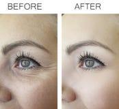 Anti-behandling för behandling för kvinnaskrynklor före och efter och att åldras tillvägagångssätt royaltyfria foton