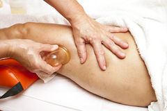 Anti cellulite massage with Ventuza vacuum body puller. Woman receiving a professional anti cellulite massage with Ventuza vacuum body puller, while lying on a Royalty Free Stock Image