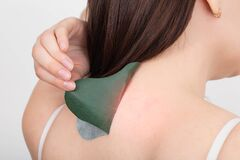 Anti-inflammatory medical herbal plaster for the treatment of spasms and pain relief of intervertebral hernias. Girl