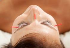 Anti--åldras akupunkturbehandling Fotografering för Bildbyråer