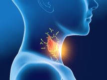 Anticorpi che attaccano la ghiandola tiroide di una donna, tiroidite autoimmune, la malattia di Hashimoto royalty illustrazione gratis