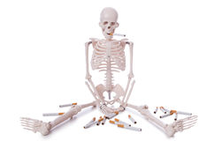 The antismoking concept with cigarettes and skull Stock Photography