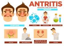 Antritis anlednings- och symptomaffisch med textvektorn royaltyfri illustrationer