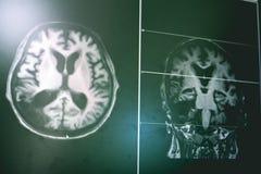 ANUNCIO con el cambio de la materia blanca del CVD foto de archivo