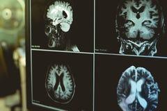 ANUNCIO con el cambio de la materia blanca del CVD Fotografía de archivo libre de regalías