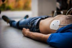 Anwendung von Defibrillationselektroden Stockfotos