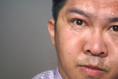 Anxious asian face. An anxious male face off to one side of the picture. Sweat is beading on his forehead. He is looking flustered and a bit unshaven with pursed Stock Image