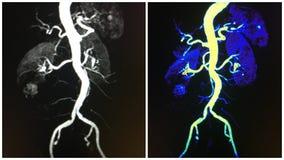 Aorta renal arteries kidneys mra  collage Stock Photo