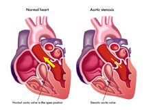 Aorta- stenosis Arkivfoto
