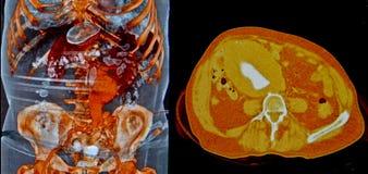 Aortaaneurisma, CT Royalty-vrije Stock Afbeeldingen