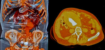 Aortic aneurysm, CT Royalty Free Stock Images