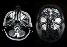 Aortic aneurysm, CT Stock Images