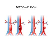 Aortic aneurysm. Vector illustration for medical use. Types of abdominal aortic aneurysm. normal aorta, and enlarged vessels. Vector illustration for medical use Stock Illustration