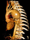 Aortic false aneurysm. (asterisk) due to a blunt trauma in car crash accident on computed tomography 3D reconstruction Stock Photo