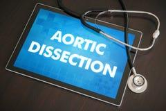 Aortic rozcięcie diagnozy medyczny pojęcie dalej (kierowy nieład) zdjęcie royalty free