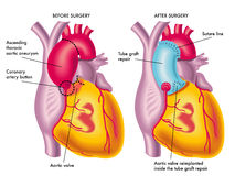 aortic thorakalt för aneurysm Arkivfoto