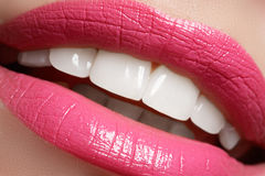 Aperfeiçoe o sorriso antes e depois do descoramento Dentes dos cuidados dentários e do alvejante Sorriso com os dentes saudáveis  Foto de Stock