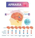 Aphasia vector illustration. Labeled educational scheme with brain disorder. Aphasia vector illustration. Labeled educational scheme with brain neuron disorder stock illustration