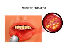 Aphthous stomatitis. aphthae Stock Photos