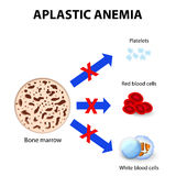 Aplastic anemia Royalty Free Stock Photography
