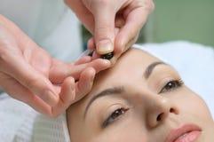 Aplicación del tratamiento de la piel Imagen de archivo libre de regalías