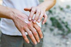 Aplicando un emoliente a la piel escamosa seca como en el tratamiento del psoriasis, del eczema y de otras enfermedades de la pie foto de archivo