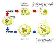 Apoptosis and necrosis. Difference. Apoptotic versus necrotic morphology. Apoptosis and necrosis is a form of cell death. Structural changes Of cells undergoing Royalty Free Stock Photos