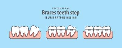 Apoya vector del ejemplo del paso de los dientes en fondo azul dental ilustración del vector