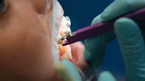 Apoyos de fijación en los dientes metrajes