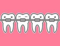 Apoyos del diente de la historieta Fotos de archivo