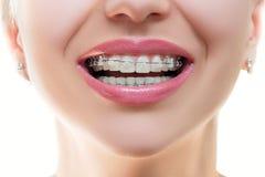 Apoyos dentales en los dientes Imagen de archivo libre de regalías