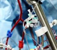 Apparecchiatura artificiale di circolazione sanguigna nella terapia intensiva immagine stock libera da diritti