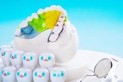 Apparecchio ortodontico del fermo dentario fotografia stock libera da diritti