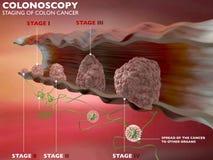 Appareil digestif de deux points d'examen de colonoscopie Photographie stock