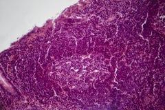 Appendicite simple aigu?, micrographe l?ger illustration de vecteur