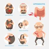 Appendicitis Stock Photos