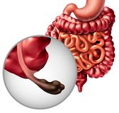 Appendix Cancer vector illustration