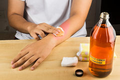 Apple cider vinegar effective natural remedy for skin itch, fung Royalty Free Stock Images