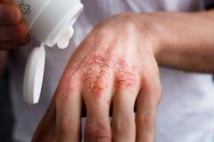 Applicando un emolliente alla pelle a fiocchi asciutta come nel trattamento della psoriasi, dell'eczema e di altre condizioni del Fotografia Stock Libera da Diritti