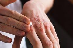 Applicando un emolliente alla pelle a fiocchi asciutta come nel trattamento della psoriasi, dell'eczema e di altre condizioni del Fotografie Stock