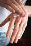 Applicando un emolliente alla pelle a fiocchi asciutta come nel trattamento della psoriasi, dell'eczema e di altre condizioni del Fotografia Stock
