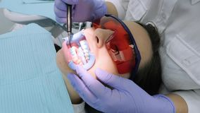 Application of protective whitening gel to the teeth. stock video footage